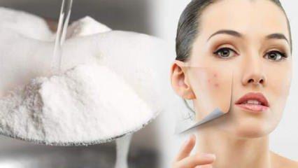 Doğal sivilce kurutucu karbonat maskesi nasıl hazırlanır? Karbonat ve yoğurt maskesi tarifi...
