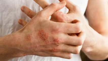 Buerger hastalığı nedir, kimlerde görülür? Buerger hastalığının belirtileri nelerdir?
