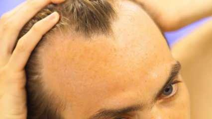 Saç dökülmesi tedavisinde saç ektirmek caiz mi? Protez saç nedir? Protez saç gusle engel mi