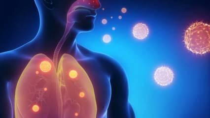 Zatürre (pnömoni) neden olur? Zatürre belirtileri nelerdir? Zatürre tedavisi var mıdır?