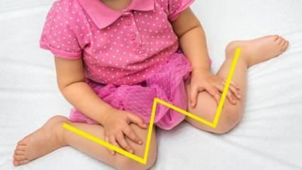 Bebeklerde ve çocuklarda oturuş bozukluğu! Çocuklarda W oturuşu zararlı mı, nasıl düzeltilir?