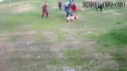 Antalya'da Pitbull saldırısı kamerada! Dehşet görüntüler...
