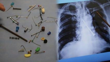 Hepsi insan vücudundan çıkarıldı: 13 santimlik çividen tespih tanesine kadar 80 ilginç cisim!