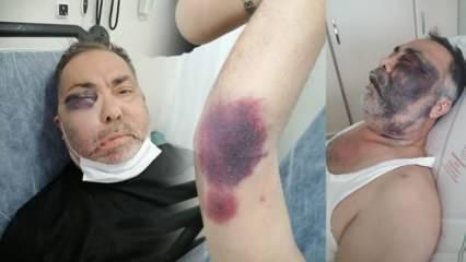 Yüzde 90 engelli vatandaşı darp eden zanlı tutuklandı!