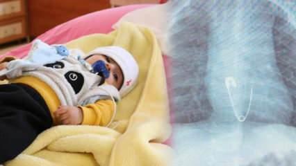 Diyarbakır'da 5 aylık bebek çengelli iğne yuttu, ölümden döndü!