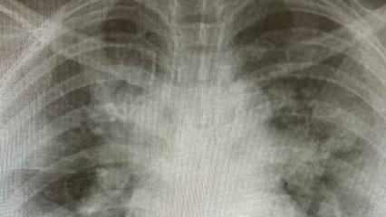 Röntgenler paylaşıldı! Yoğun bakımlar gençlerle dolu