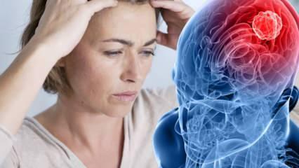 Beyin tümörü neden olur? Beyin tümörü belirtileri nelerdir? Beyin tümörü tedavisi zor mudur?