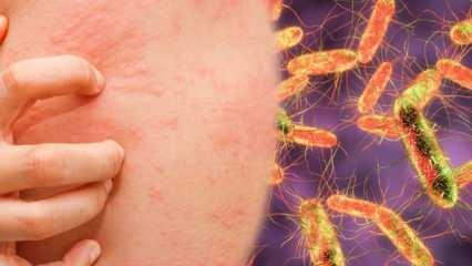 Tifüsün hastalığı neden olur? Tifüsün hastalığı belirtileri nelerdir?