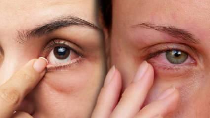 Gözlerde yanma, batma ve kızarıklığa dikkat!