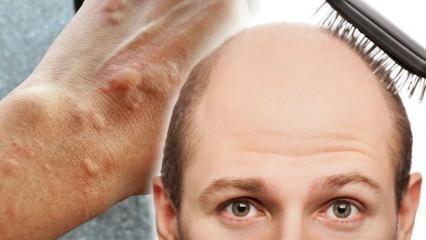 Koronavirüste kurdeşen haberci, saç dökülmesi belirti!