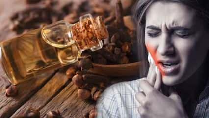 Çürük diş ağrısına ne iyi gelir? Diş ağrısını hemen geçiren doğal ağrı kesiciler