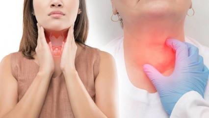 Ailesinde tiroid hastalığı bulunanlar dikkat!