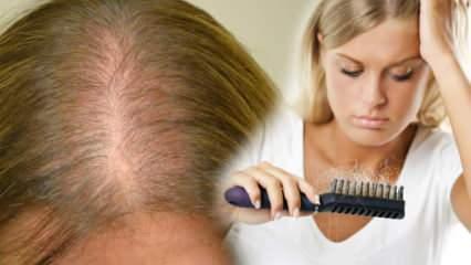 Saç dökülmesine karşı en etkili yöntem nedir? Saç dökülmesini durduran maske tarifleri
