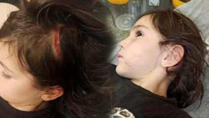 6 yaşındaki Narin, sevdiği köpeğin saldırısında yaralandı
