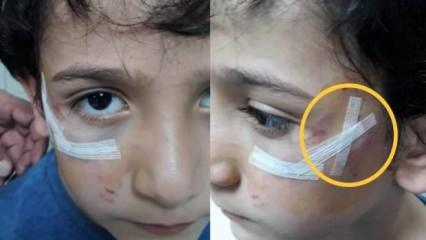 Bursa'da köpek dehşeti! 8 yaşındaki çocuğun yanağını koparıyordu