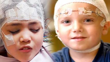 Çocuklarda epilepsi hastalığına dikkat!