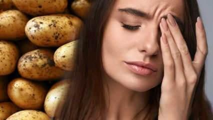 Patates göz ağrısına iyi gelir? Patatesin göze faydaları...