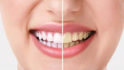 Dişlerde ağartma işlemi bilinçsiz yapıldığında kalıcı hasarlara neden oluyor