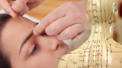 Akupunktur yaptırmanın faydaları nelerdir? Akupunktur nedir, zararları nelerdir?
