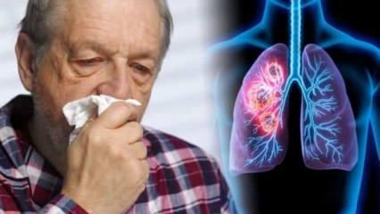 Uzmanından kritik uyarı! Sigara tetikliyor, hastalık geç fark ediliyor
