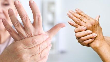 Dünyada 350 milyon kişide görülen artrit hastalığına dikkat!