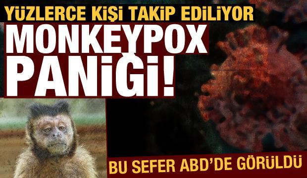 Monkeypox paniği! Yüzlerce kişi takip ediliyor (22 Temmuz 2021 Günün Önemli Gelişmeleri)